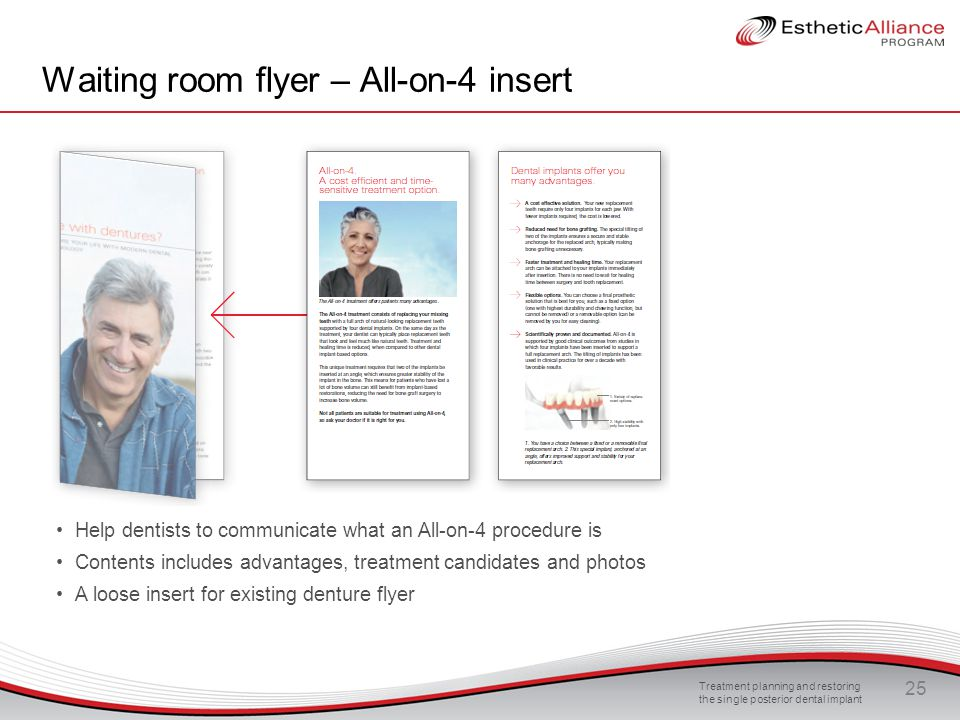 Waiting room flyer – All-on-4 insert