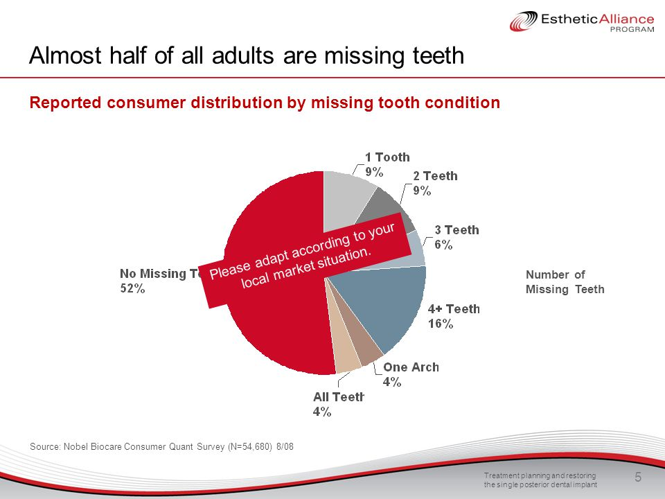 Almost half of all adults are missing teeth