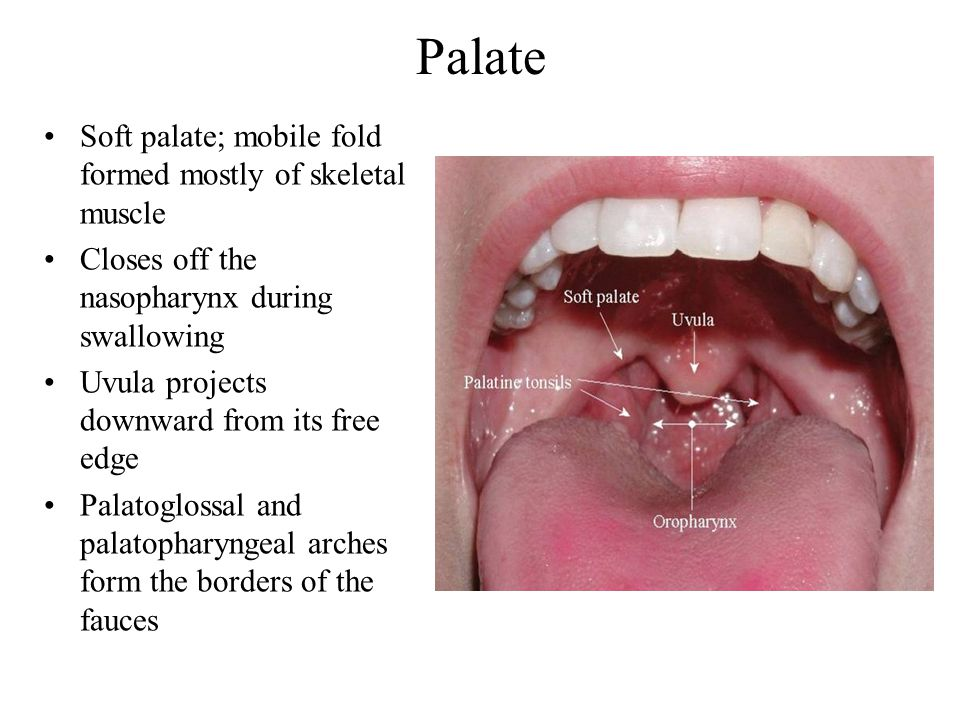 Palate Soft palate; mobile fold formed mostly of skeletal muscle