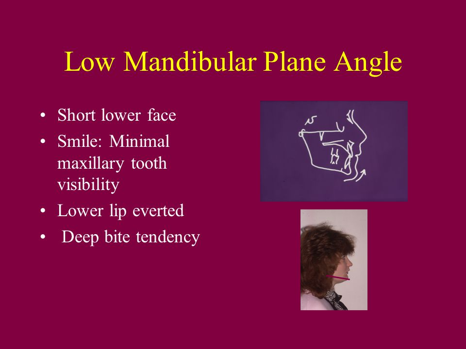 Low Mandibular Plane Angle