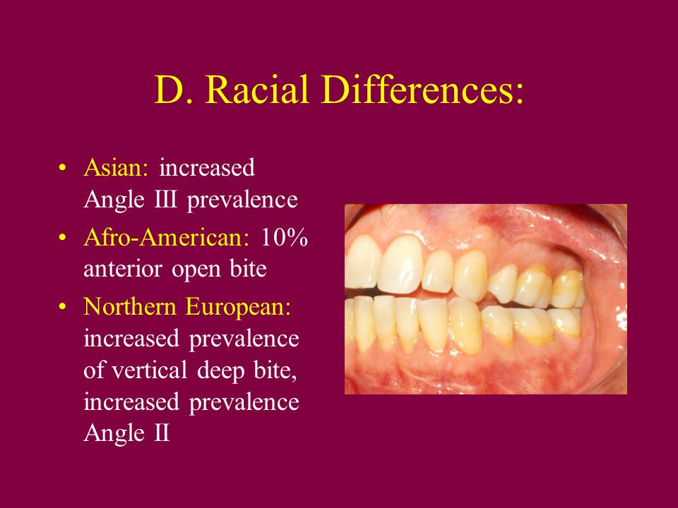D. Racial Differences: Asian: increased Angle III prevalence