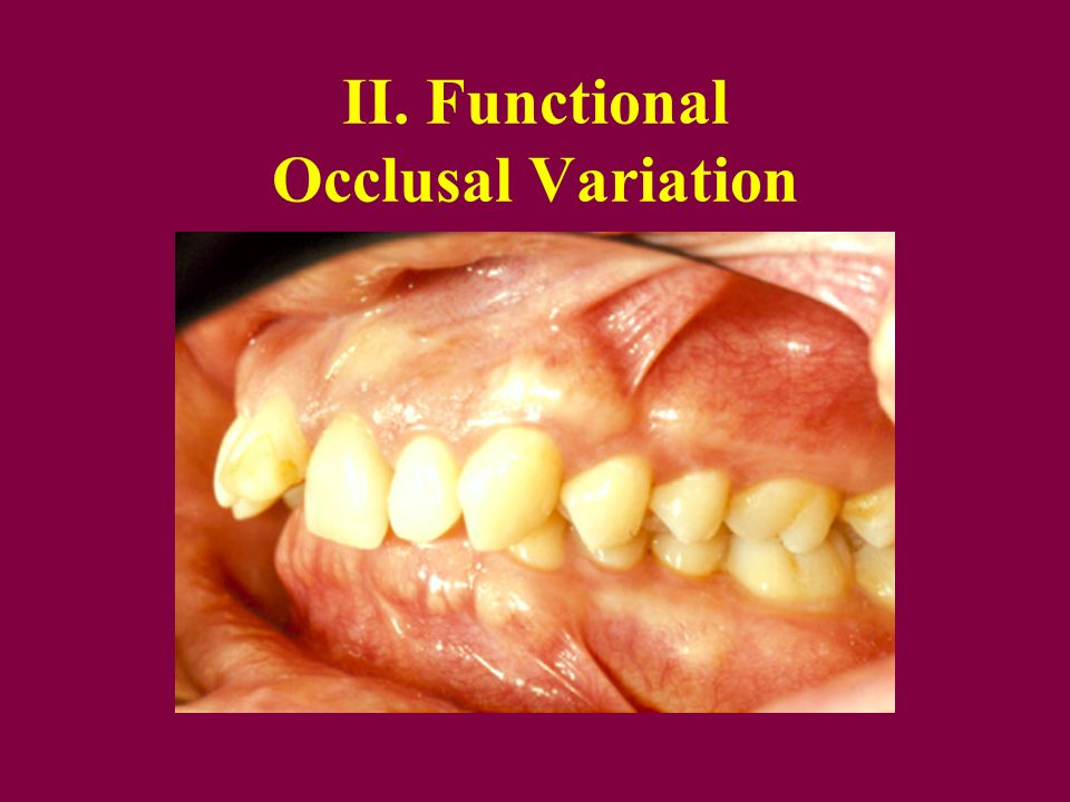 II. Functional Occlusal Variation