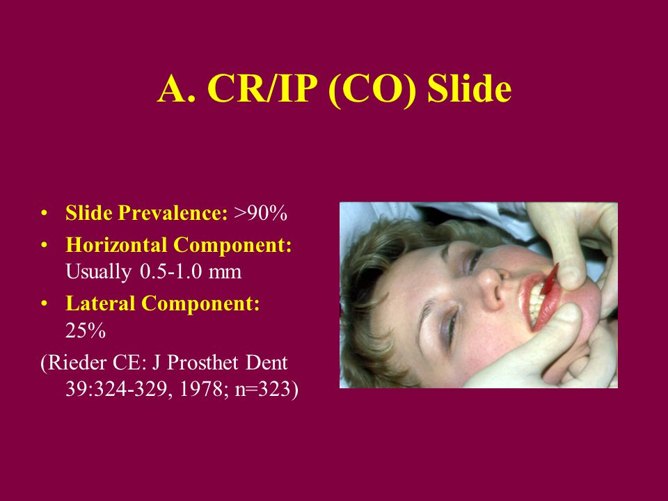 A. CR/IP (CO) Slide Slide Prevalence: >90%