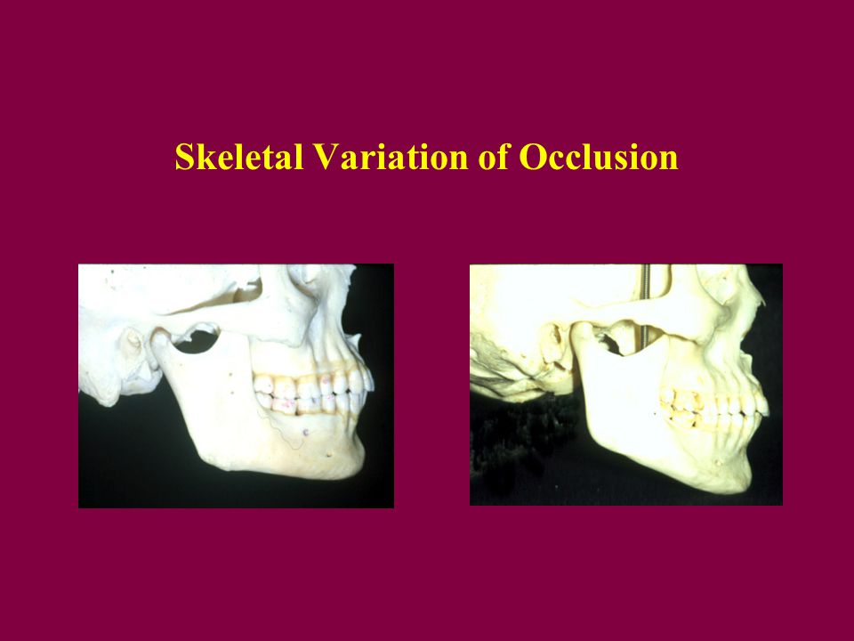 Skeletal Variation of Occlusion