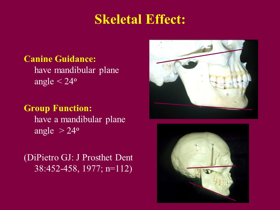 Skeletal Effect: Canine Guidance: tend to have mandibular plane angle < 24o. Group Function: tend to have a mandibular plane angle > 24o.