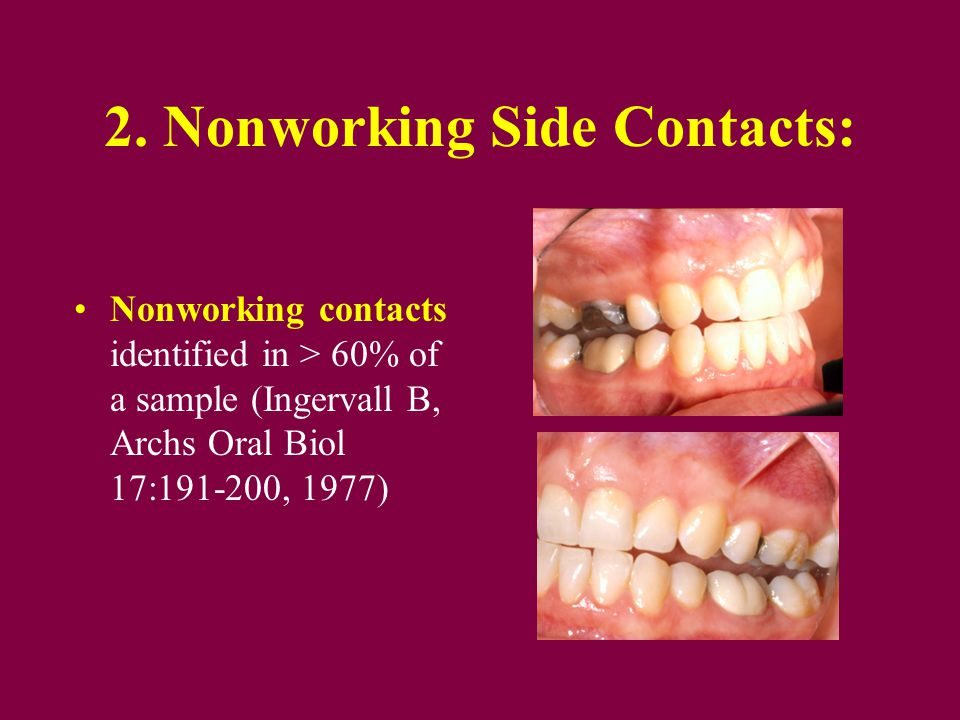 2. Nonworking Side Contacts: