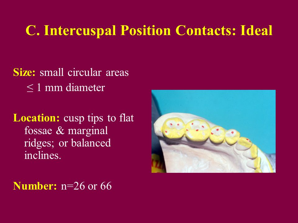 C. Intercuspal Position Contacts: Ideal