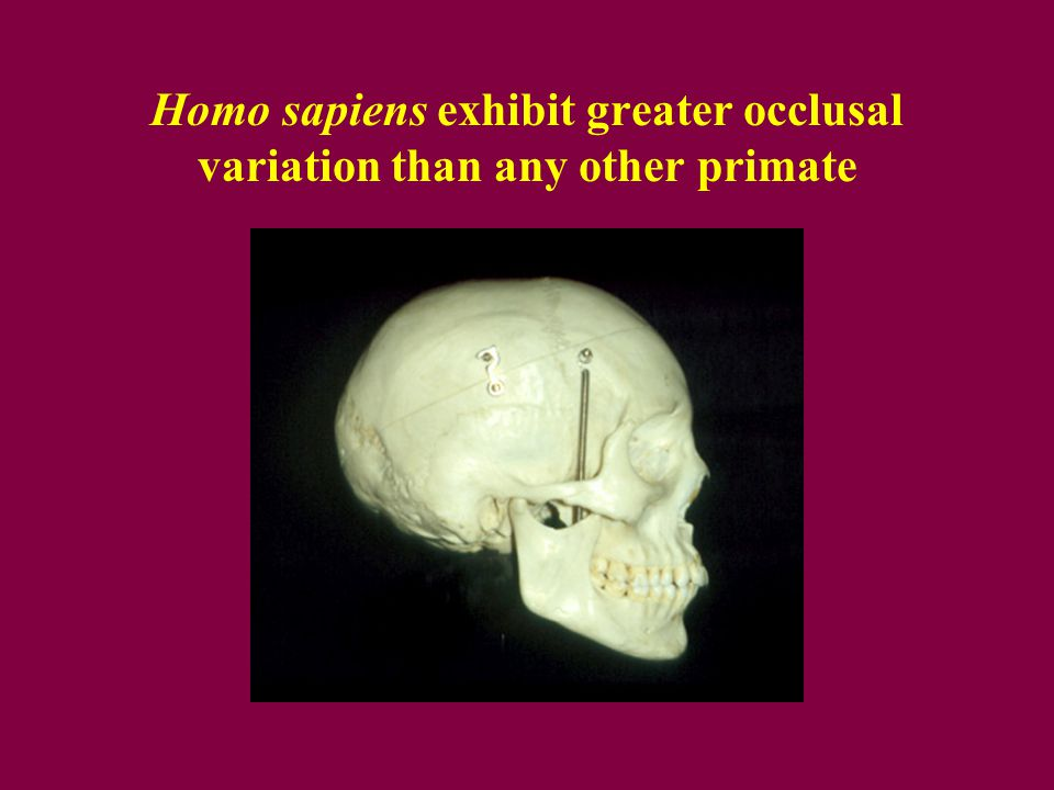 Homo sapiens exhibit greater occlusal variation than any other primate