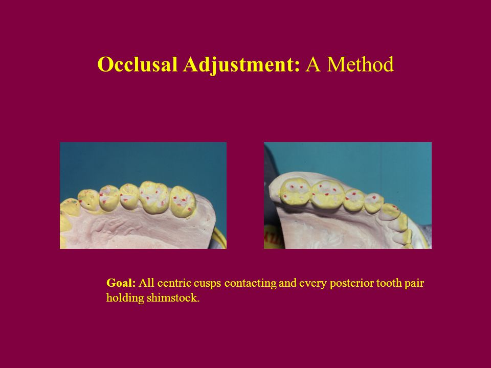 Occlusal Adjustment: A Method
