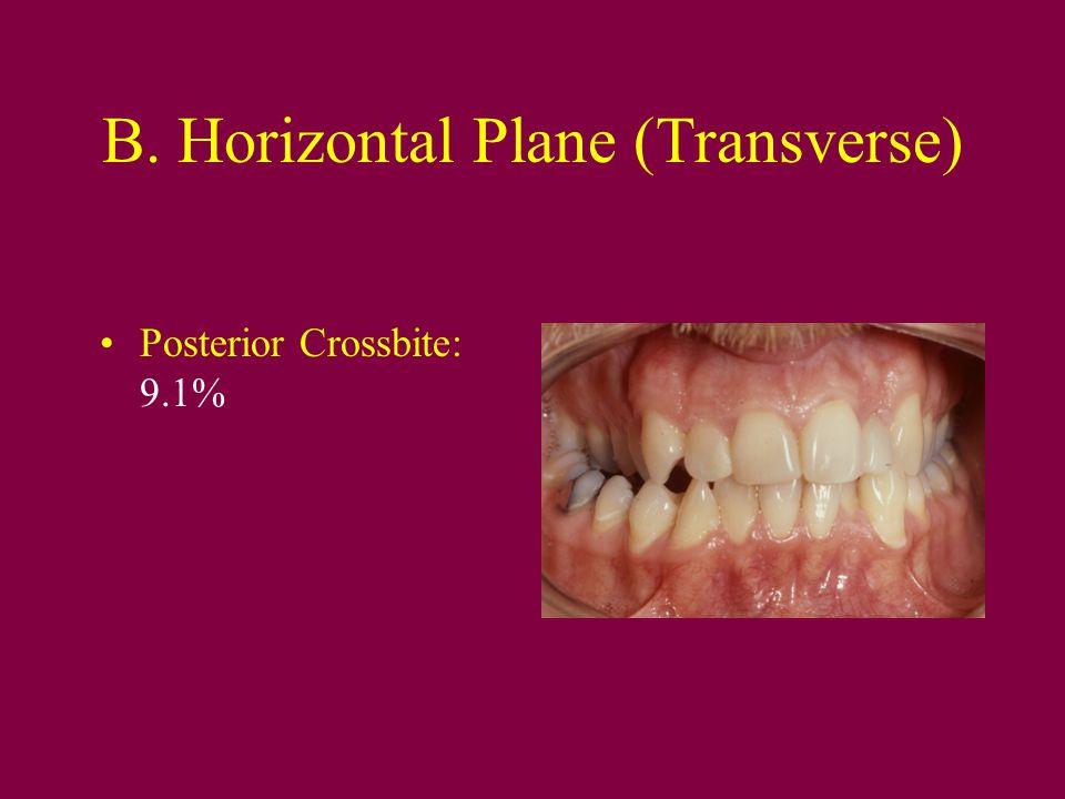 B. Horizontal Plane (Transverse)