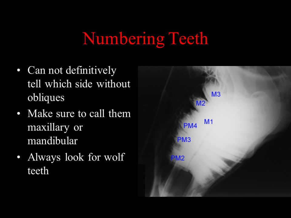 Numbering Teeth Can not definitively tell which side without obliques