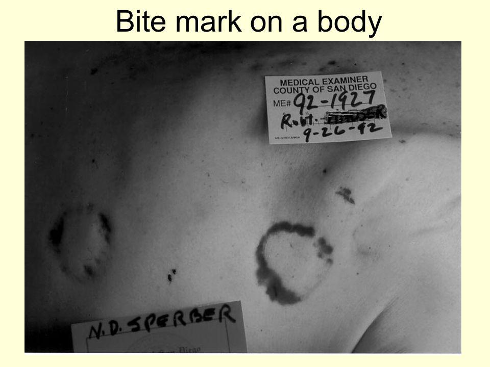 Bite mark on a body