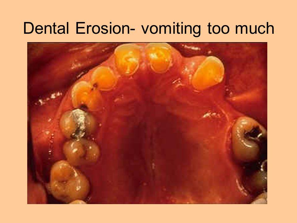 Dental Erosion- vomiting too much