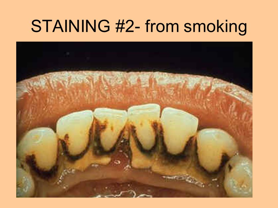 STAINING #2- from smoking