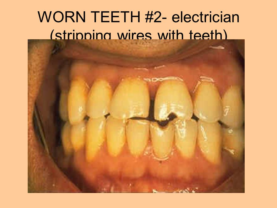 WORN TEETH #2- electrician (stripping wires with teeth)