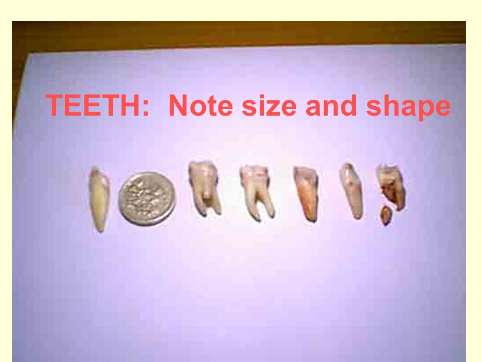 TEETH: Note size and shape