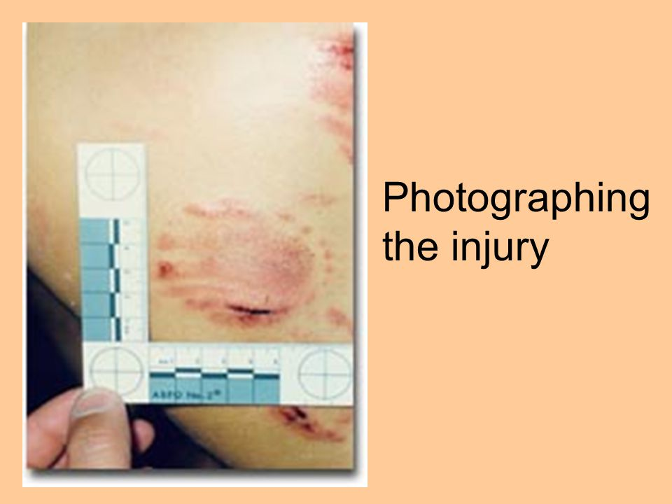 Photographing the injury