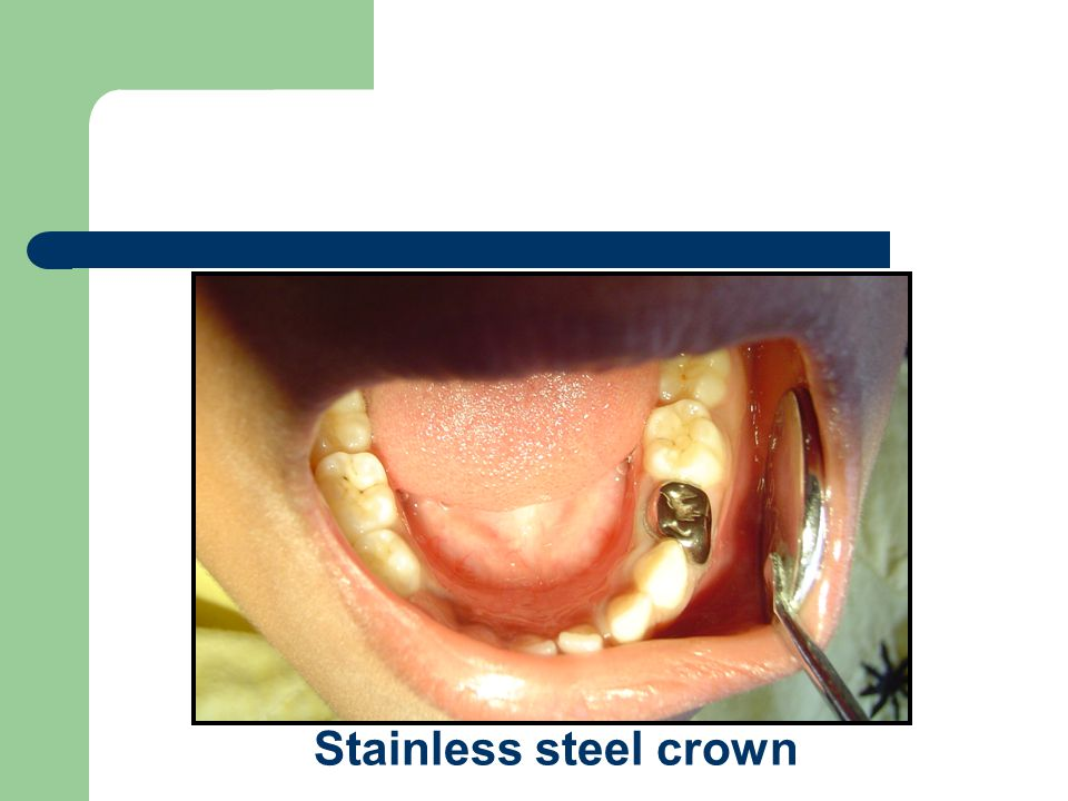 Stainless steel crown