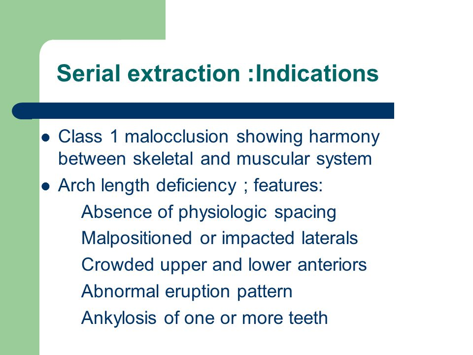 Serial extraction :Indications