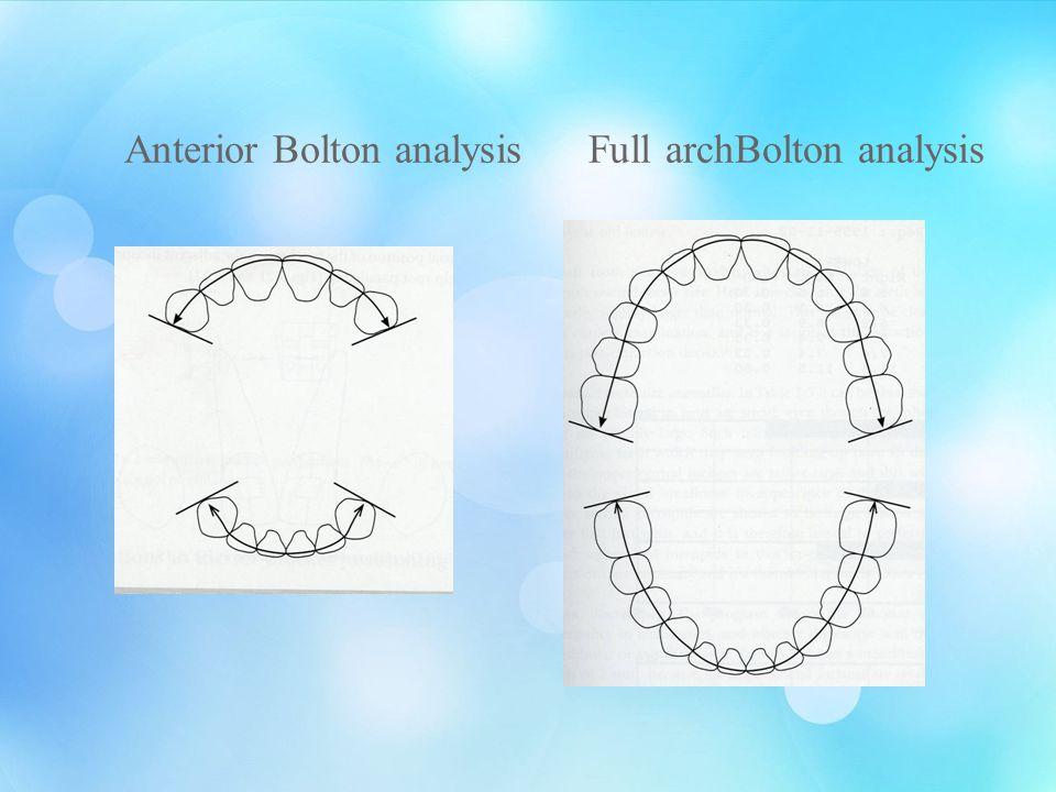 Anterior Bolton analysis Full archBolton analysis