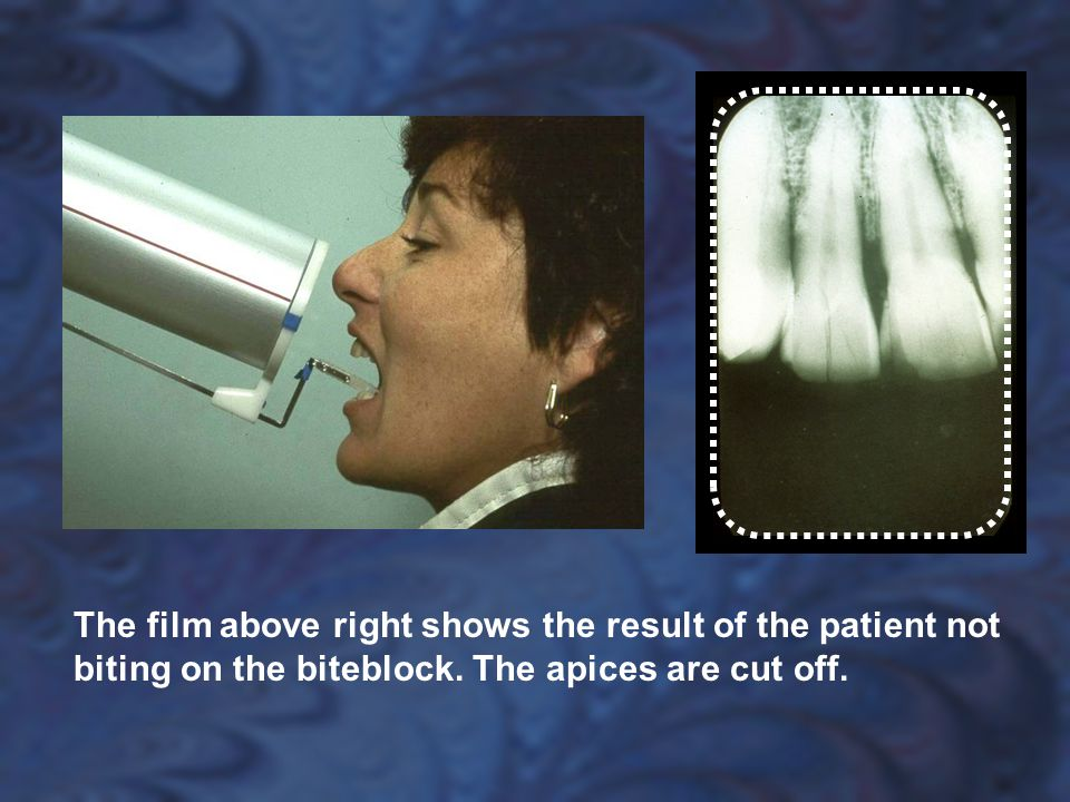 The film above right shows the result of the patient not biting on the biteblock.
