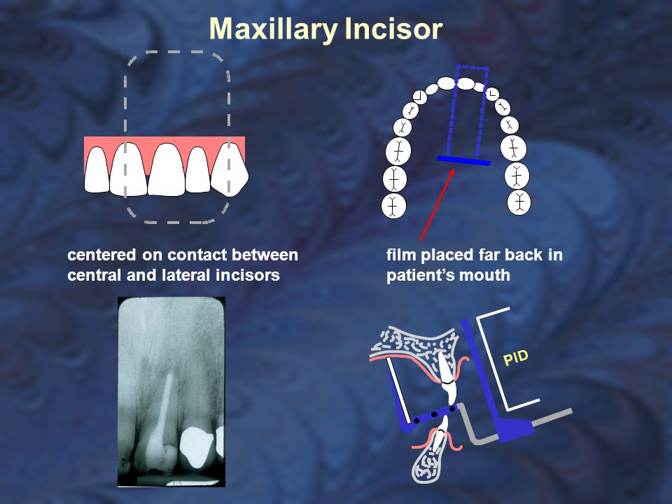 Maxillary Incisor centered on contact between central and lateral incisors.