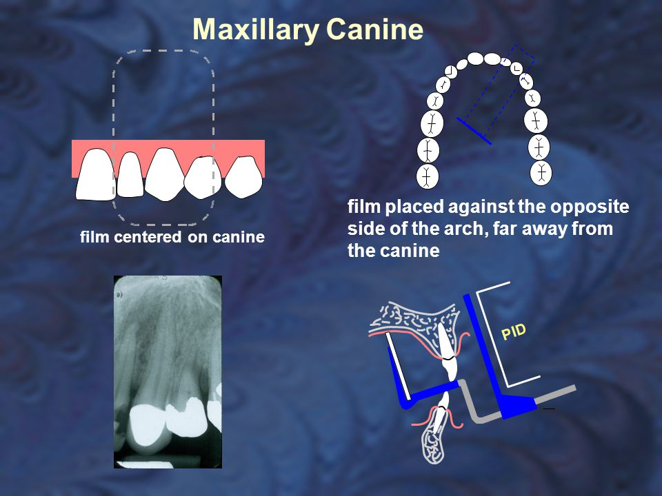 Maxillary Canine film placed against the opposite side of the arch, far away from the canine.