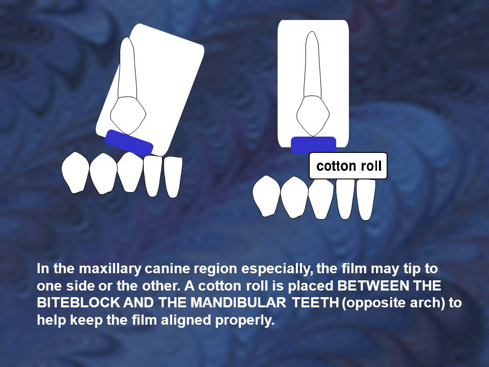 In the maxillary canine region especially, the film may tip to one side or the other.