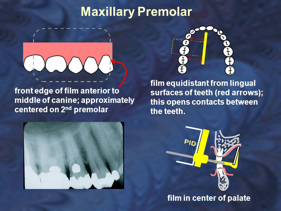 Maxillary Premolar film equidistant from lingual surfaces of teeth (red arrows); this opens contacts between the teeth.