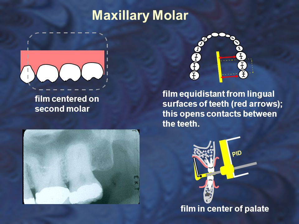 Maxillary Molar film equidistant from lingual surfaces of teeth (red arrows); this opens contacts between the teeth.