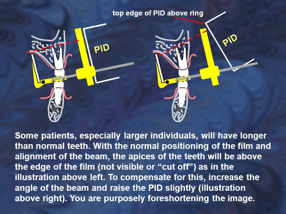 Some patients, especially larger individuals, will have longer than normal teeth. With the normal positioning of the film and alignment of the beam, the apices of the teeth will be above the edge of the film (not visible or cut off ) as in the illustration above left. To compensate for this, increase the angle of the beam and raise the PID slightly (illustration above right). You are purposely foreshortening the image.