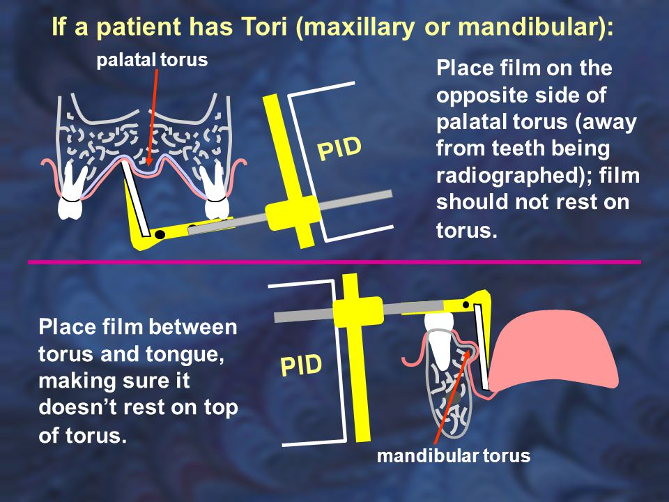 If a patient has Tori (maxillary or mandibular):