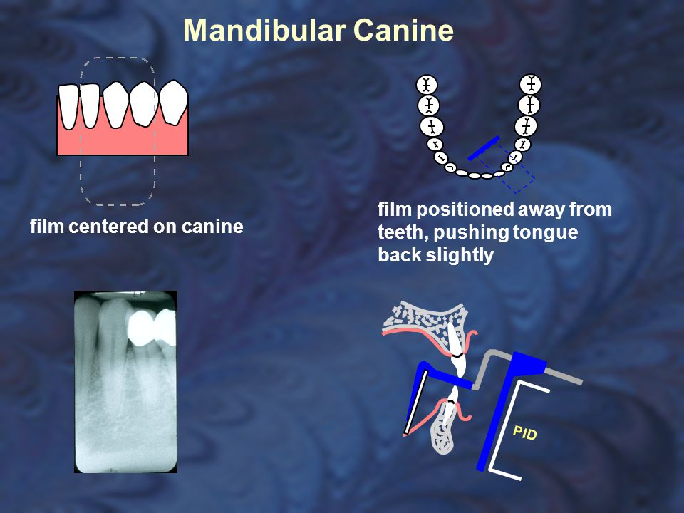Mandibular Canine film positioned away from teeth, pushing tongue back slightly.