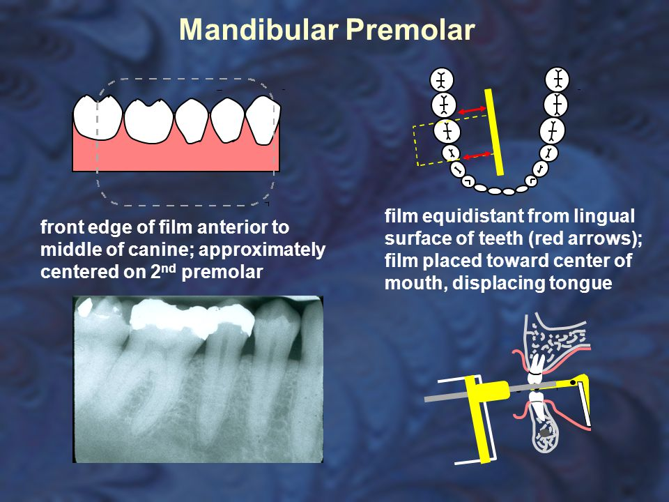 Mandibular Premolar film equidistant from lingual surface of teeth (red arrows); film placed toward center of mouth, displacing tongue.