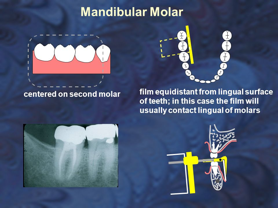 centered on second molar