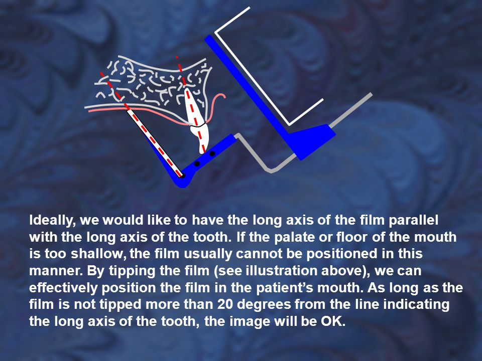 Ideally, we would like to have the long axis of the film parallel with the long axis of the tooth.