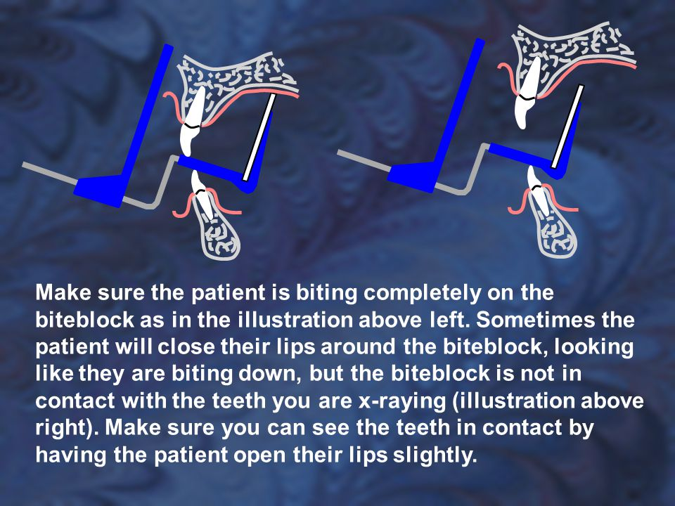 Make sure the patient is biting completely on the biteblock as in the illustration above left.