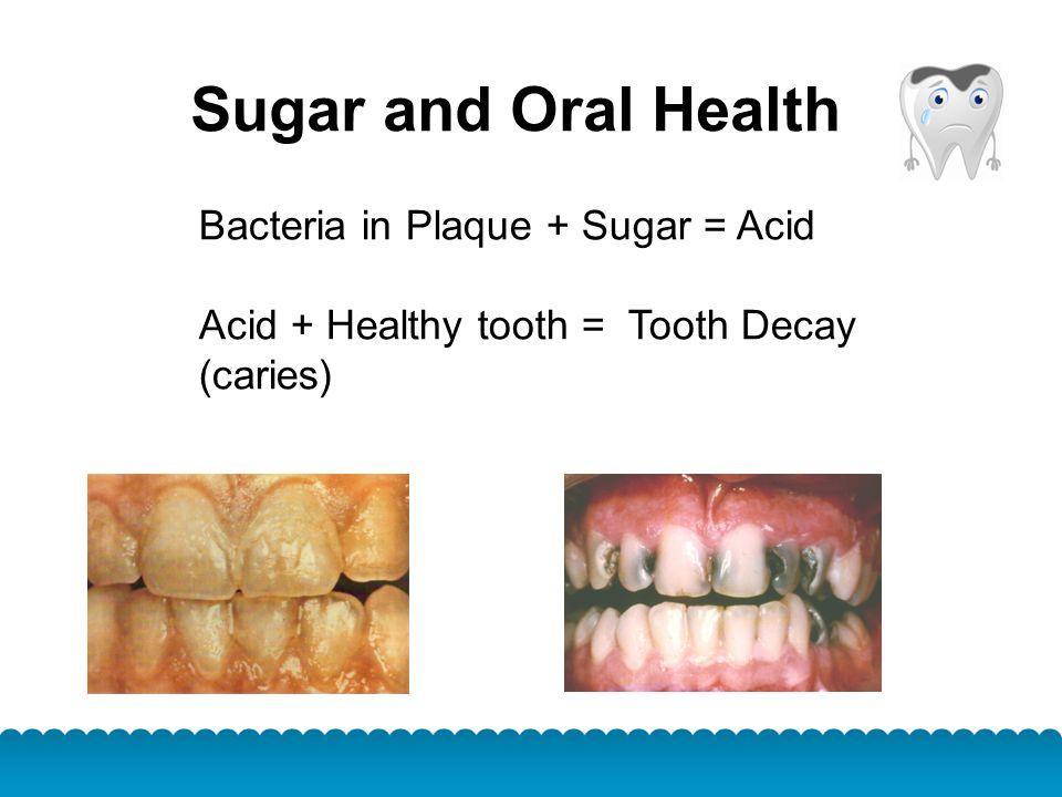 Sugar and Oral Health Bacteria in Plaque + Sugar = Acid