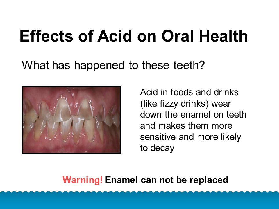 Warning! Enamel can not be replaced