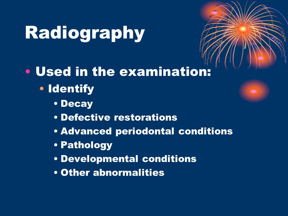 Radiography Used in the examination: Identify Decay