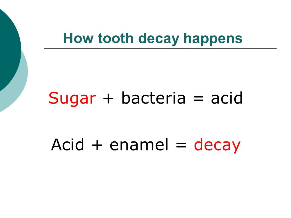 How tooth decay happens