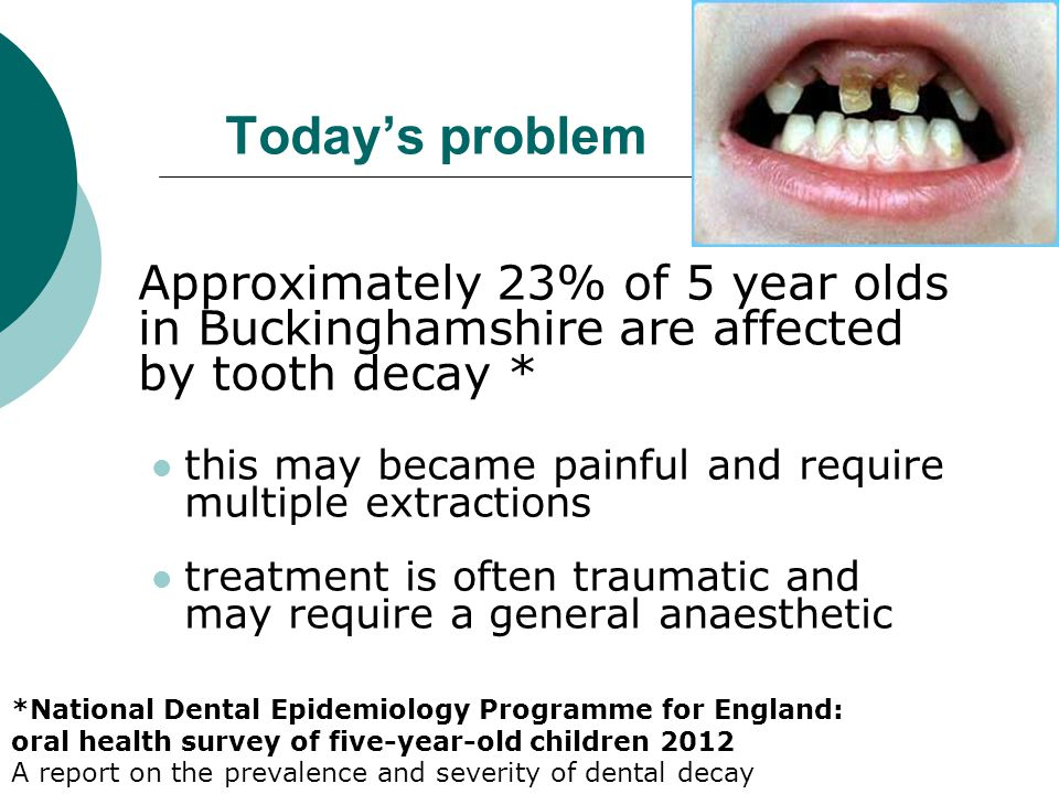 Today's problem Approximately 23% of 5 year olds in Buckinghamshire are affected by tooth decay *