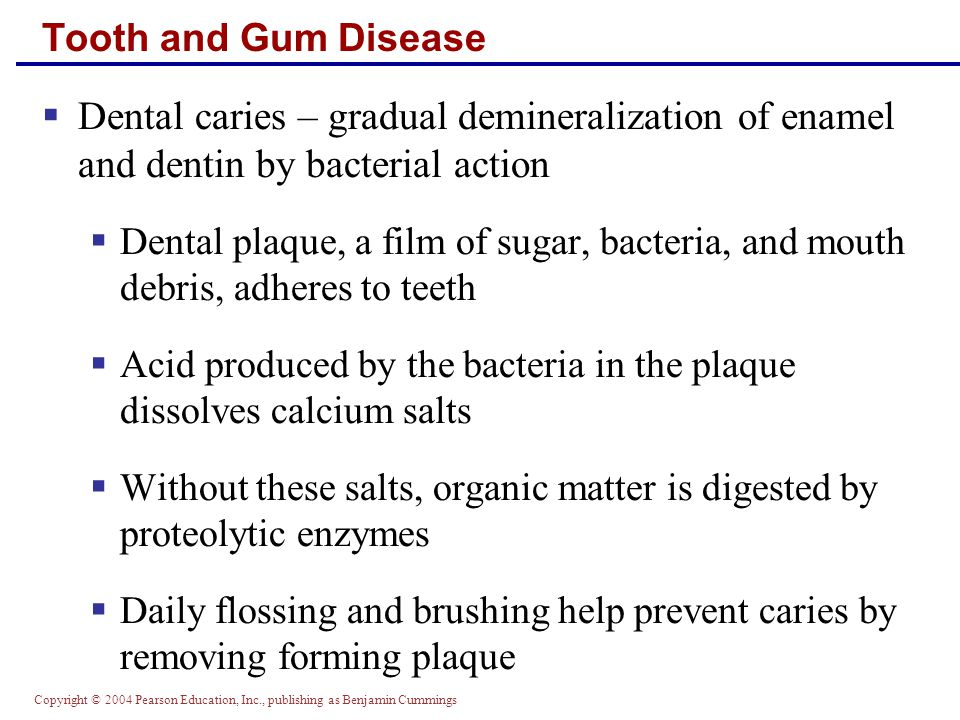 Tooth and Gum Disease Dental caries – gradual demineralization of enamel and dentin by bacterial action.