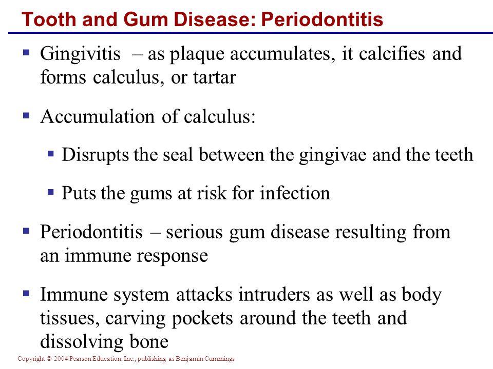 Tooth and Gum Disease: Periodontitis
