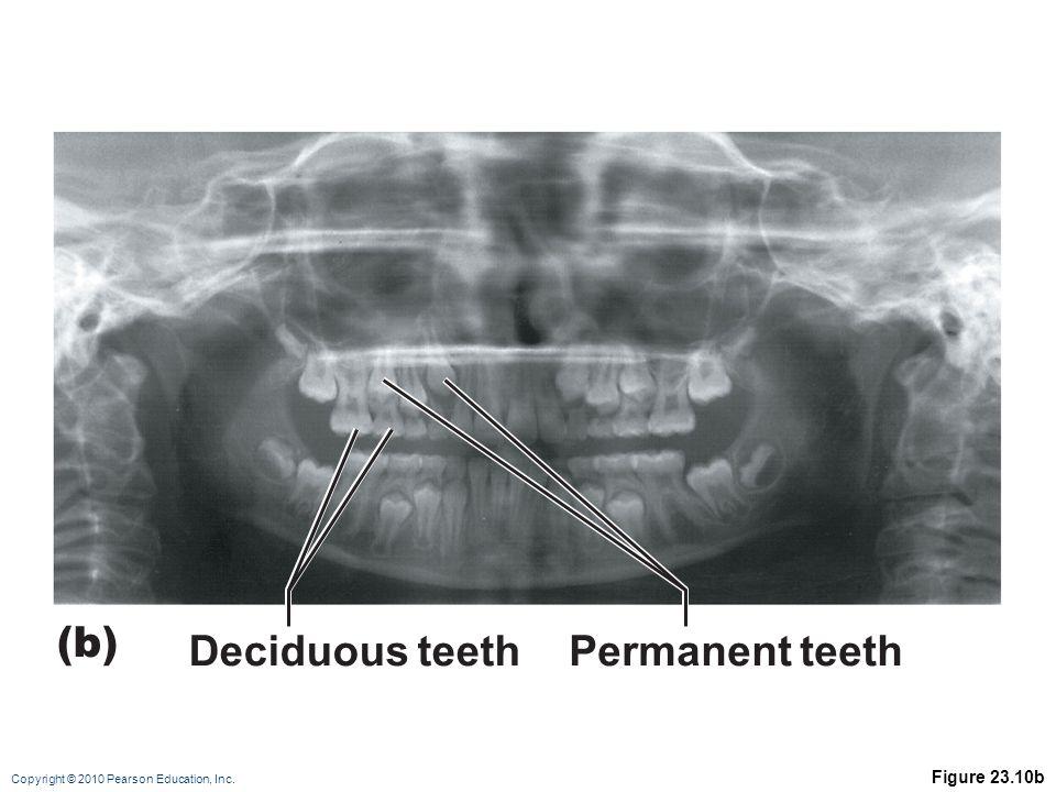 (b) Deciduous teeth Permanent teeth Figure 23.10b