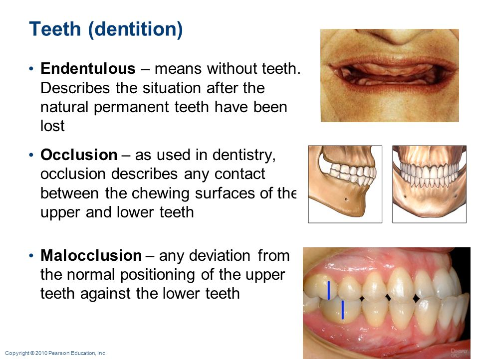 Teeth (dentition) Endentulous – means without teeth. Describes the situation after the natural permanent teeth have been lost.