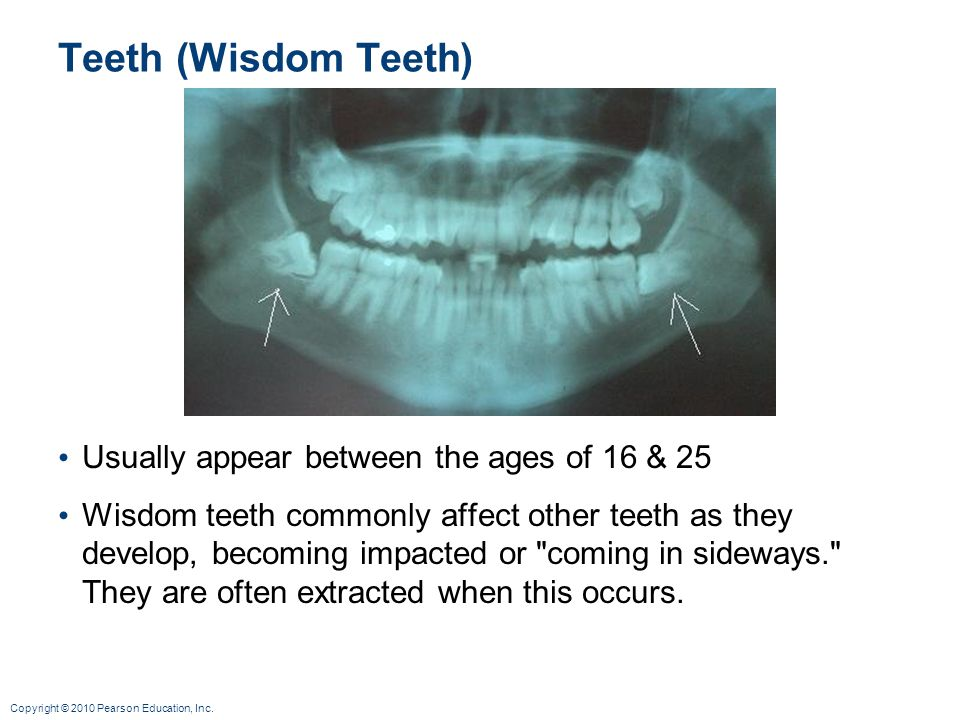 Teeth (Wisdom Teeth) Usually appear between the ages of 16 & 25
