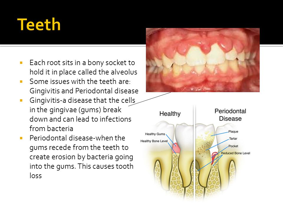 Teeth Each root sits in a bony socket to hold it in place called the alveolus. Some issues with the teeth are: Gingivitis and Periodontal disease.