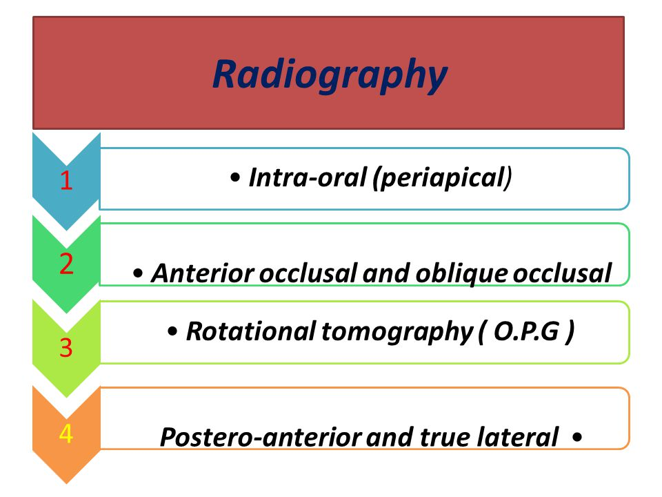 Radiography 2 Intra-oral (periapical)