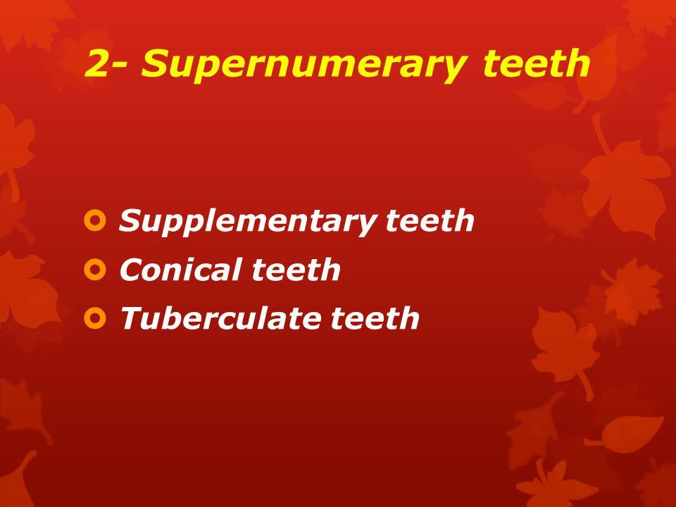 2- Supernumerary teeth Supplementary teeth Conical teeth